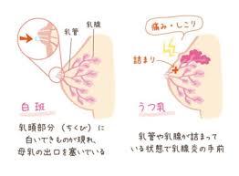 乳腺炎画像